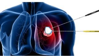 Η διαδερμική κρυοθεραπεία (CRYOABLATION)  στην αντιμετώπιση του καρκίνου