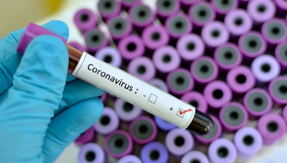 Έχουν καταγραφεί 25 εκατομμύρια κρούσματα κορωνοϊού σε όλο τον κόσμο