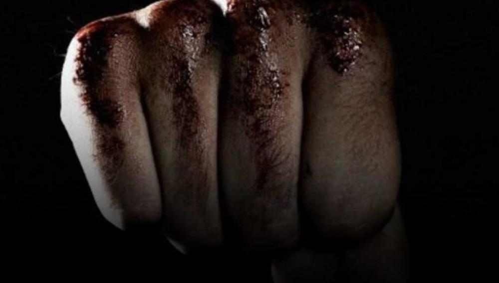 Ηρακλειο: Απολογείται ο 42χρονος που ξυλοκόπησε την σύντροφό του και την έστειλε στη ΜΕΘ